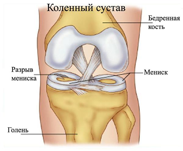 Восстановление коленного сустава цена операции выпадение мениска коленного сустава